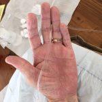 Complete Healing Severe Form of Dermatitis